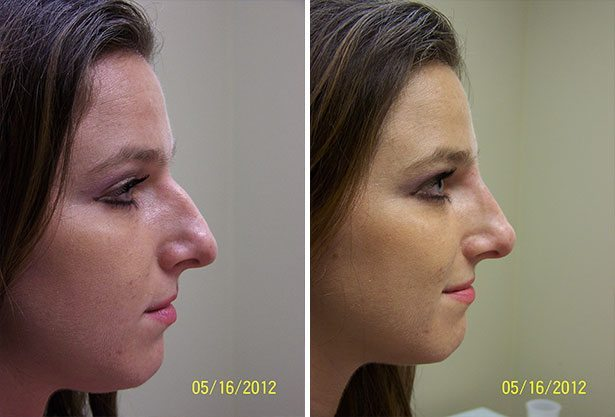 Non Surgical Rhinoplasty Richmond Cosmetic Clinic