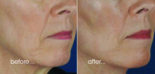 PDO Thread Contouring/Lift - Richmond cosmetic clinic